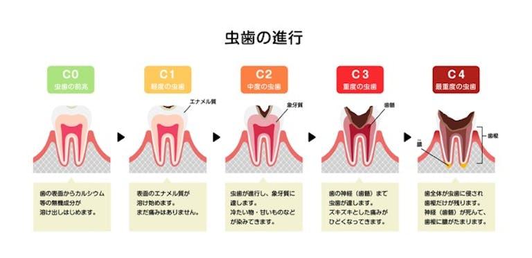 """虫歯菌は""""乳酸菌""""だった!? 虫歯の原因とメカニズム、そして正しい対策を知ろう!"""